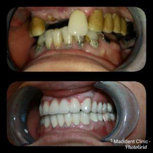 Reabilitare orala complexa