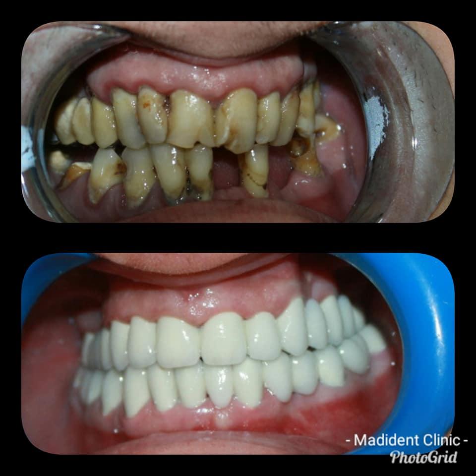 Stabilizare parodontala si ulterior restaurari protetice