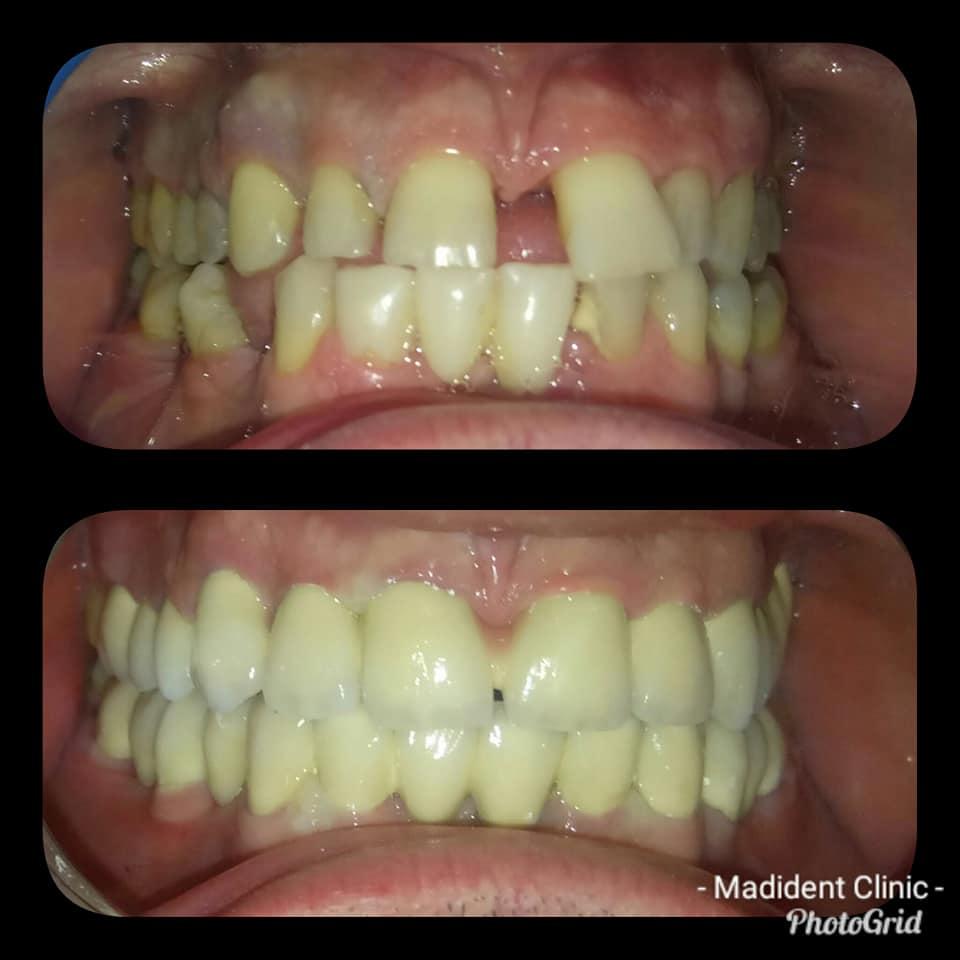 stomatolog alba iulia reabilitareoralacomplexa paroprotetica dentist
