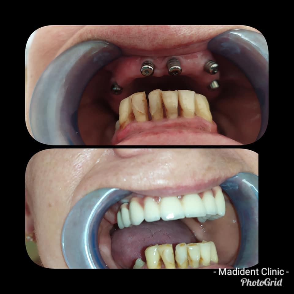 Implanturi dentare alba iulia restaurare protetica