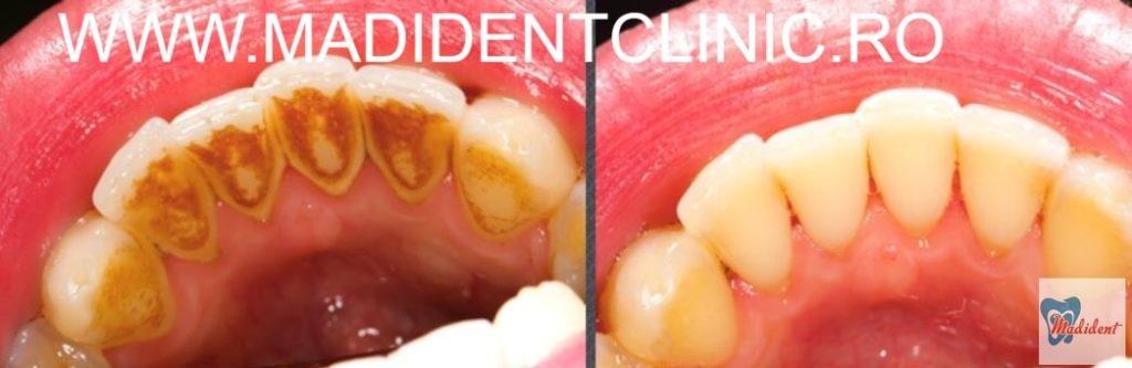 PARODONTOLOGIE – Bolile parodontale
