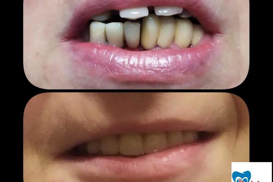 implantologia orală
