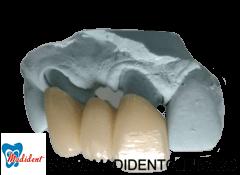 Proteza dentară
