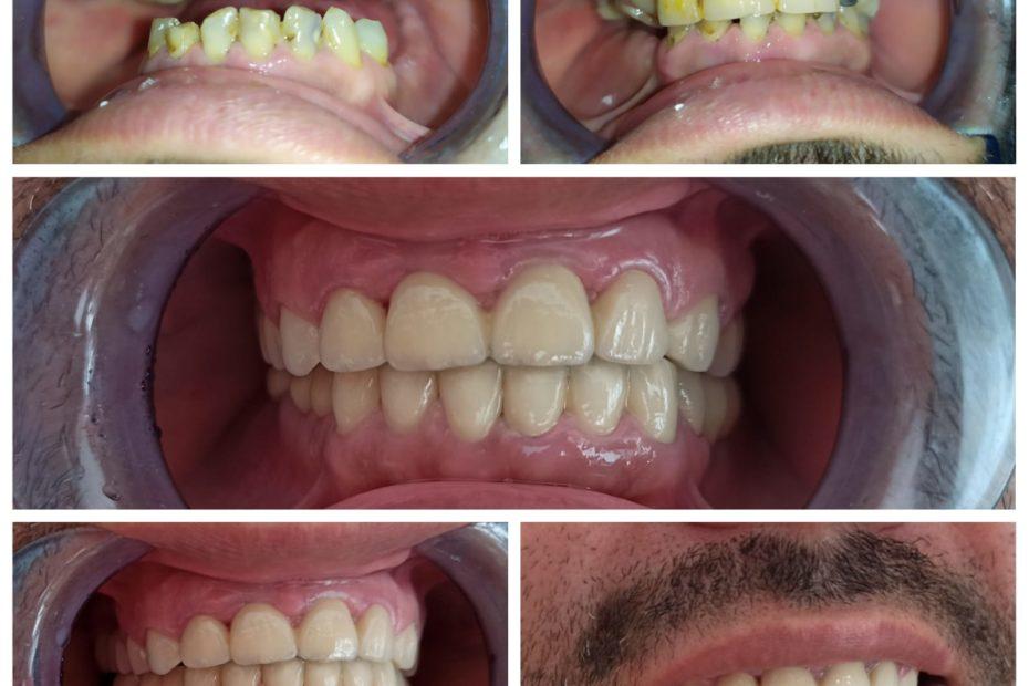 Reabilitare orala complexă pe implante