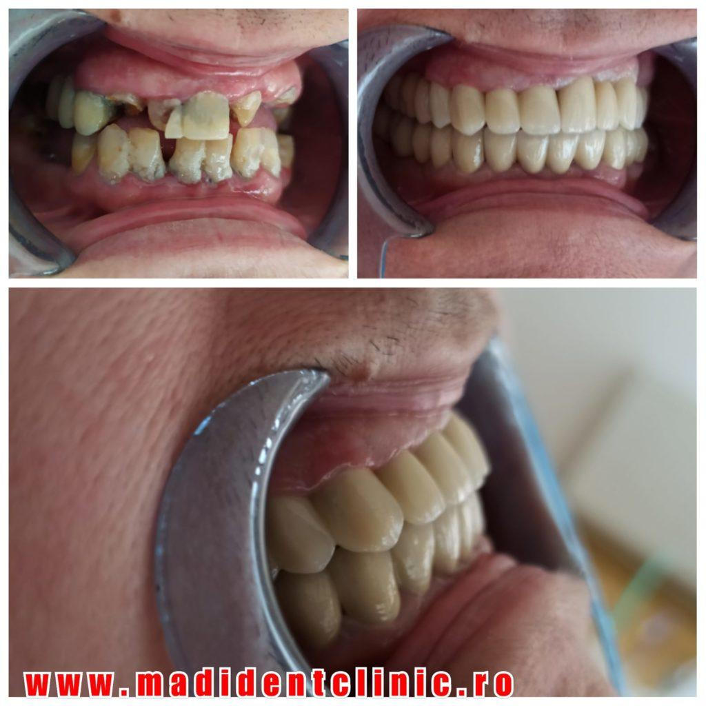 Reabilitare orală totală ceramică.