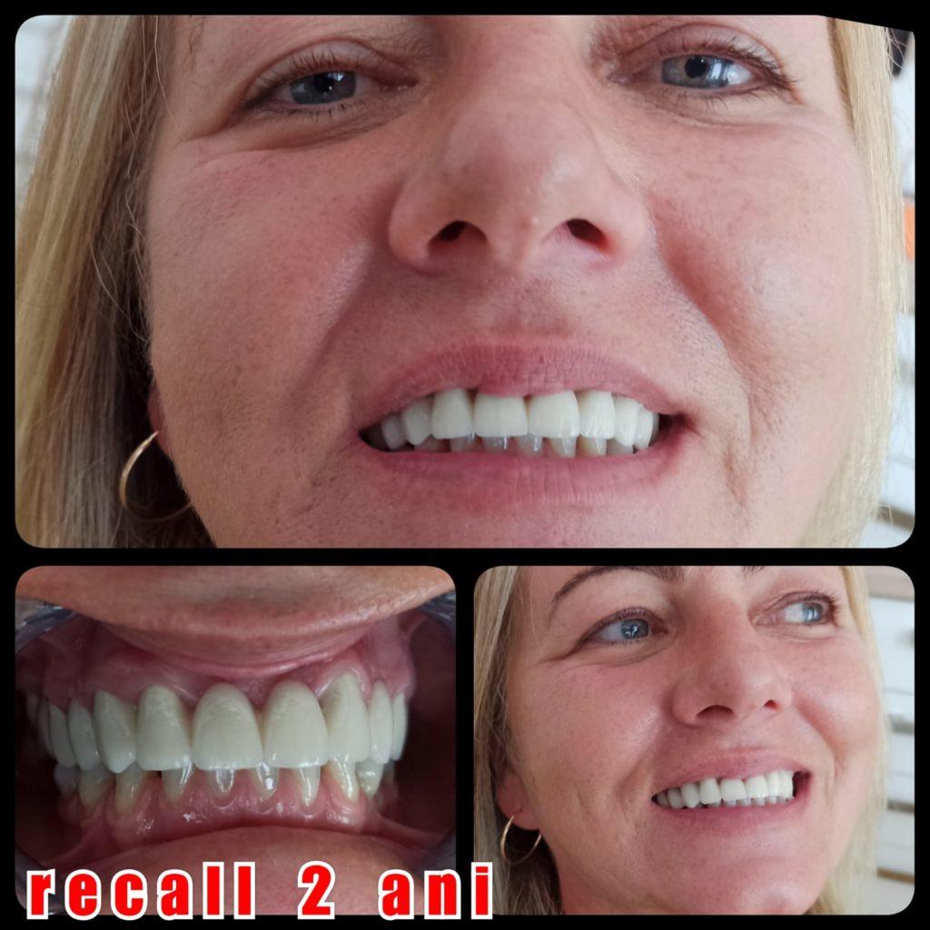 Reevaluarea statusului dentar
