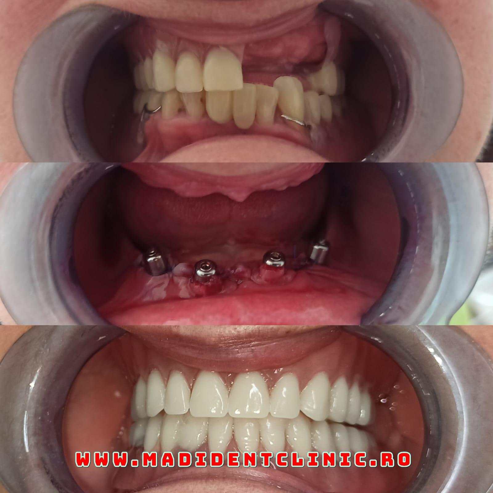 De ce este importantă provizoria în implantologia orală?