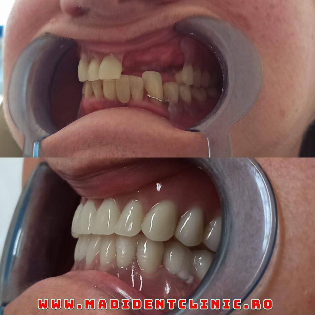 provizoria în implantologia orală